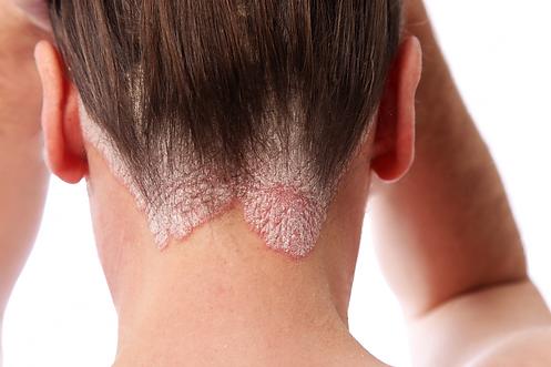 Maladies de la peau dermatec lyon - psoriasis