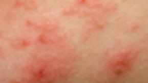 Maladies de la peau dermatec lyon - eczéma allergique ou dermatite de contact