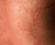 Maladies de la peau dermatec lyon - urticaire