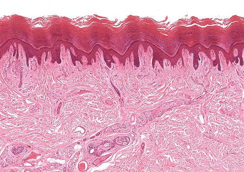 Services dermatec lyon - dermatologie - Recherche translationnelle