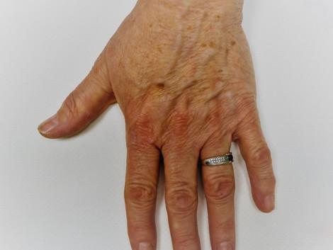 Prévenir et guérir les taches pigmentaires