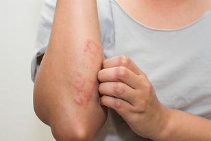Maladies de la peau dermatec lyon - eczéma constitutionnel ou dermatite atopique