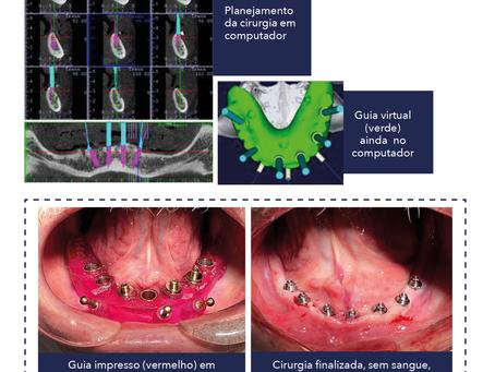 Cirurgia de implantes dentários sem cortes
