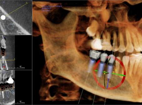 Tomografia e Tratamento Ortodôntico