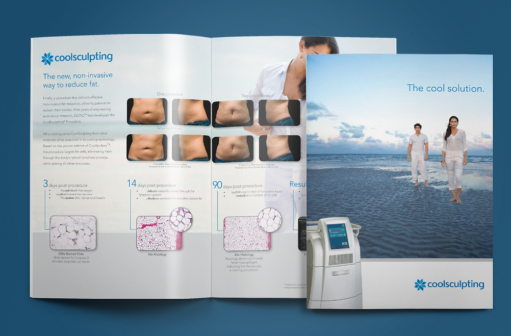 Coolsculpting Brochure