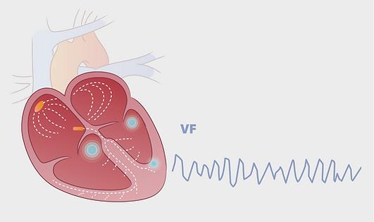 hjertestarter.png
