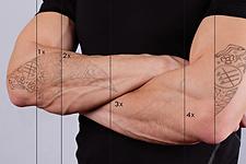 Remoción_de_tatuajes.png