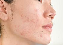 cicatrices acne.jpg