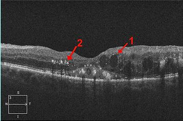 retina50-3.png