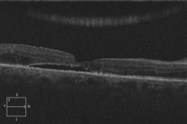 Retina 53-3.png