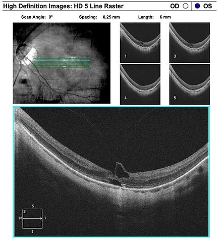 retina51-2.png