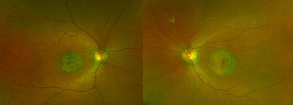 Retina 27-1.png