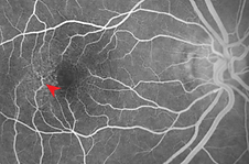 Retina 22-6.png