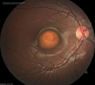 Retina 42-1.png