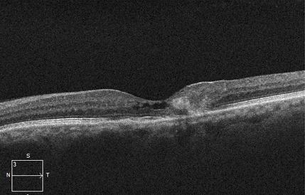 Retina 22-7.png