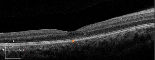 Retina 28-7.png