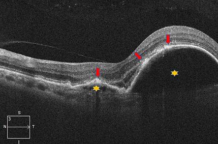 Retina 25-2.png
