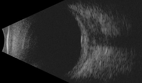 Retina 40-5.png