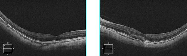 Retina 29-1.png