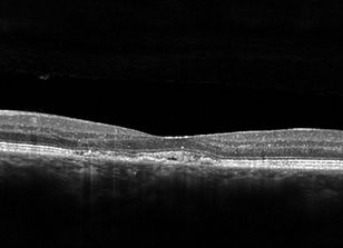 Retina47_4.jpg