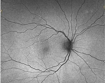 retina56_10.png