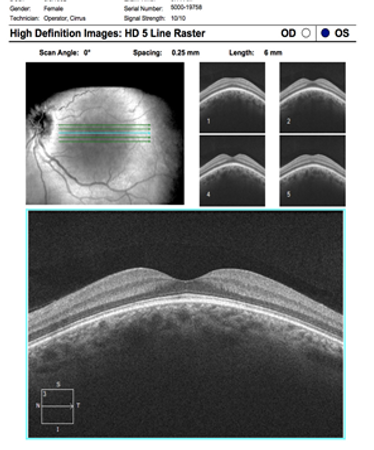 Neuro-Ophthalmology 13-11.png