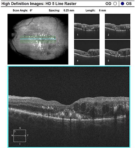 retina50-2.png