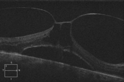 Retina 53-5.png