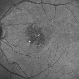 Retina47_1.jpg