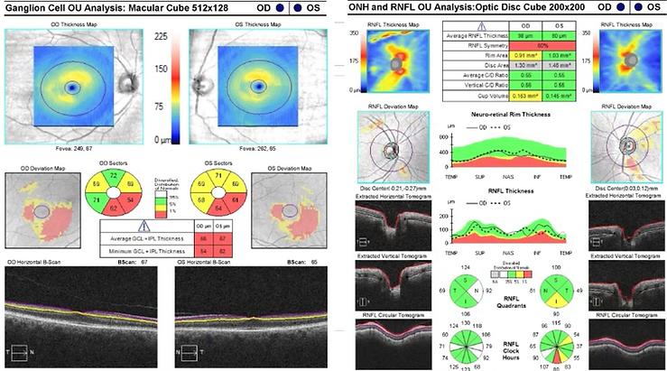 Neuro-Ophthalmology 4-1.png