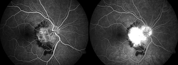 Retina 43-4.png