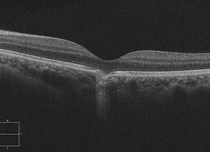 Retina 44-6.png