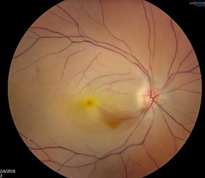 Retina 10-1.png