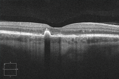 Retina 54-3.png