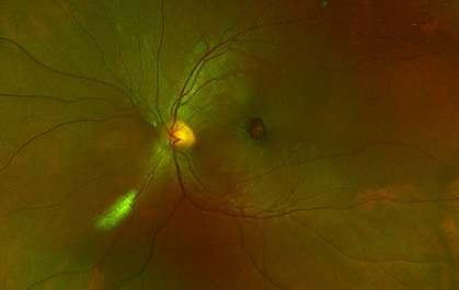 Retina 11-1.png