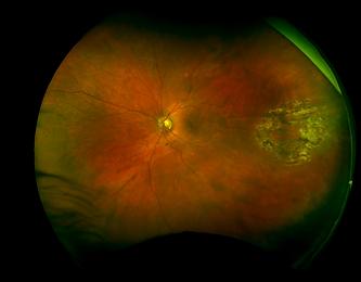 Retina 35-1.png