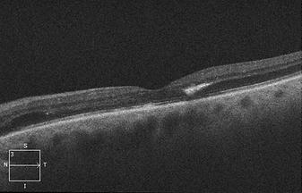 Retina45_4.png