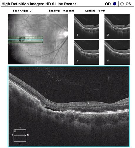 Retina 38-2.png