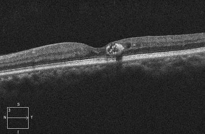 Retina 31-1.png