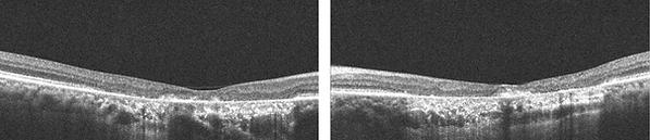 Retina 27-3.png