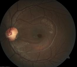 Retina 9-1.png