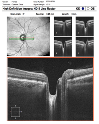 Neuro-Ophthalmology 13-3.png