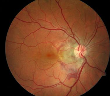 Retina 43-1.png