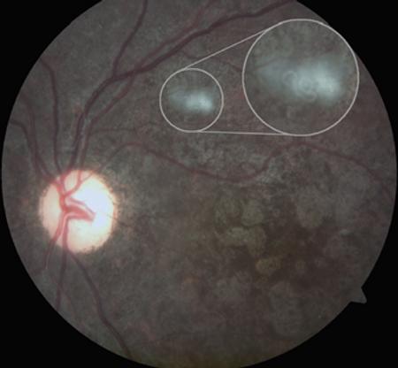 retina49_6.png