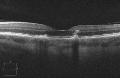 Retina 54-4.png