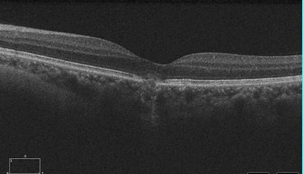 Retina 44-3.png