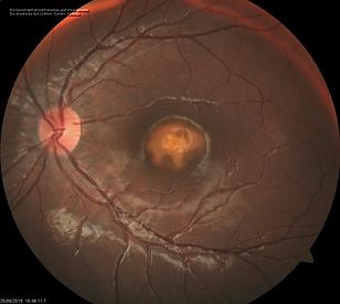 Retina 42-2.png