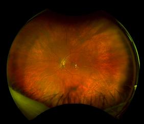Retina45_1.png