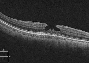 retina52-1.png