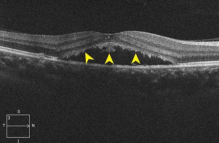 Retina 26-3.png